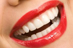 Dientes blancos y sonrisa impecable