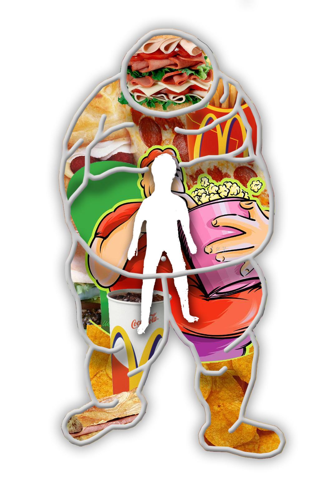 Cirugías como tratamientos contra la obesidad
