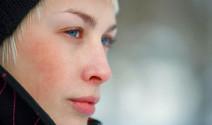 Stop a la rojez facial por culpa del frío