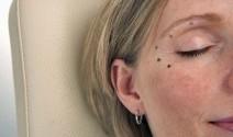 Diferentes liftings para el rostro de la mujer