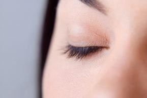 Corregir las marcas del contorno de los ojos