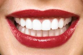 Algunos consejos para tener los dientes blancos