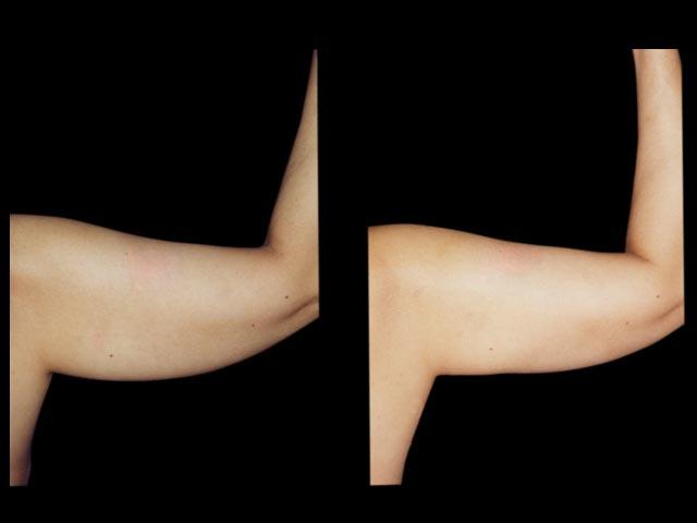 Eliminar la piel flácida con Braquioplastía