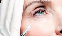 El botox, la alternativa ideal de la cirugía