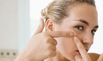 Diez tips para evitar el acné