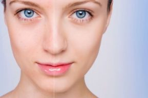 Cómo disimular el acné con maquillaje