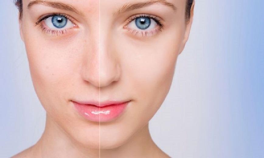 Disimular El Acn 233 Con Maquillaje