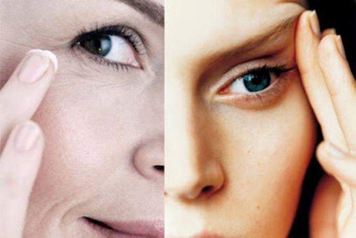 Crema antiarrugas: ¿Cuándo comenzar a usarla?