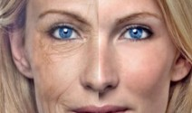 Arrugas y lipofilling