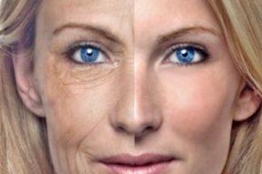 El lipofilling para corregir las imperfecciones del rostro
