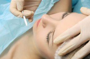 Dermaplaning, última tendencia en depilación femenina