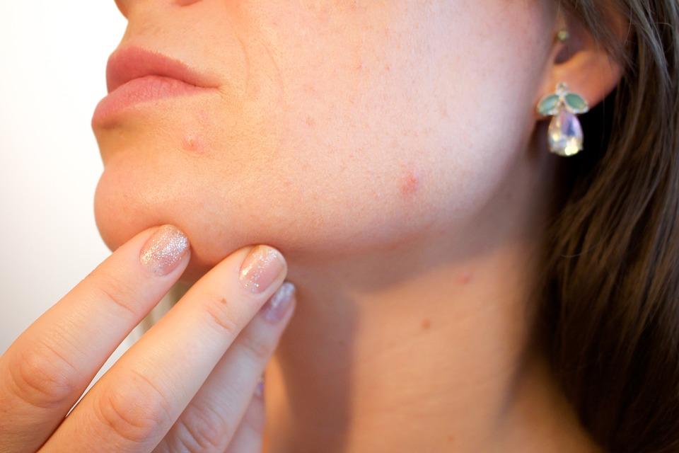 Cómo evitar que el acné afecte a la autoestima