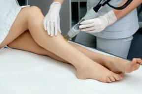 Cómo conseguir unas piernas perfectas con la depilación láser