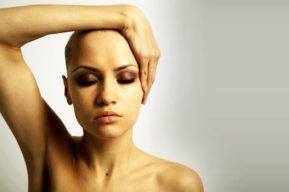 La alopecia femenina, cómo afecta y qué soluciones hay